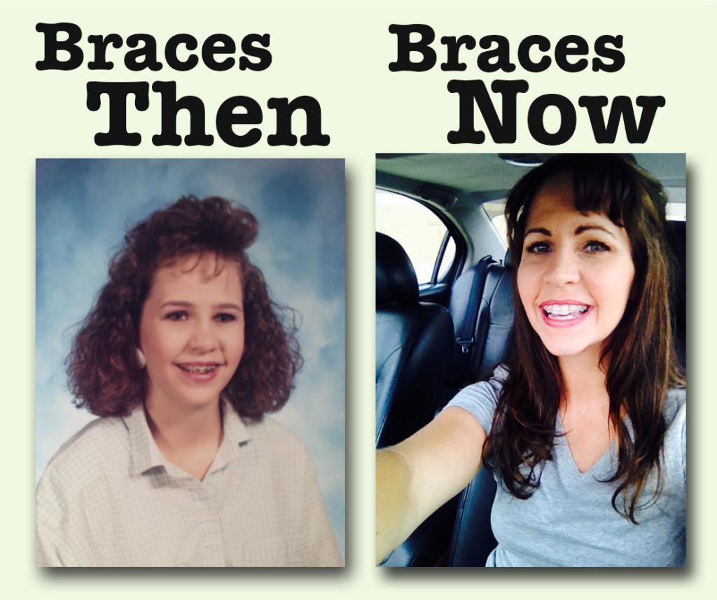 braces_edited-1