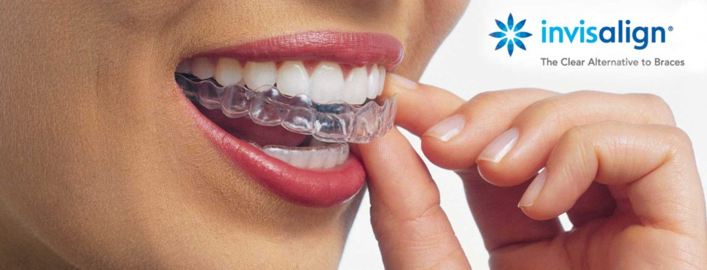 invisalign vs clear braces