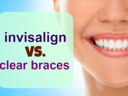 Invisalign vs. Clear Braces