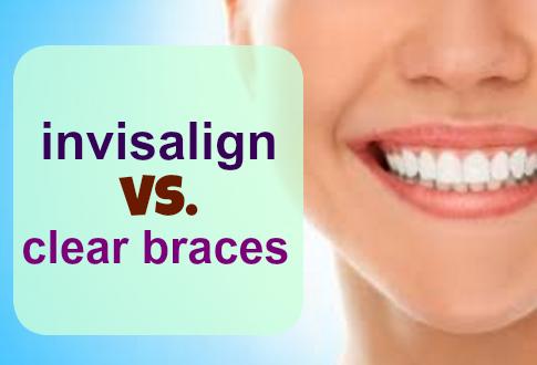 Invisalign vs. Clear Braces
