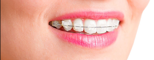 invisalign vs clear braces