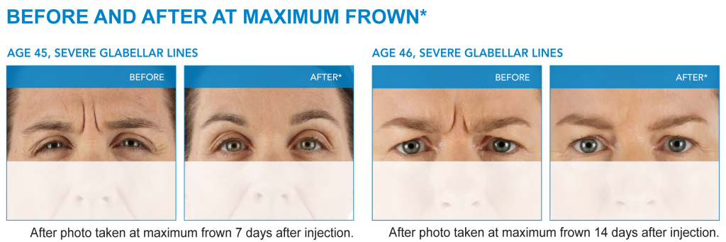 xeomin before and after pictures
