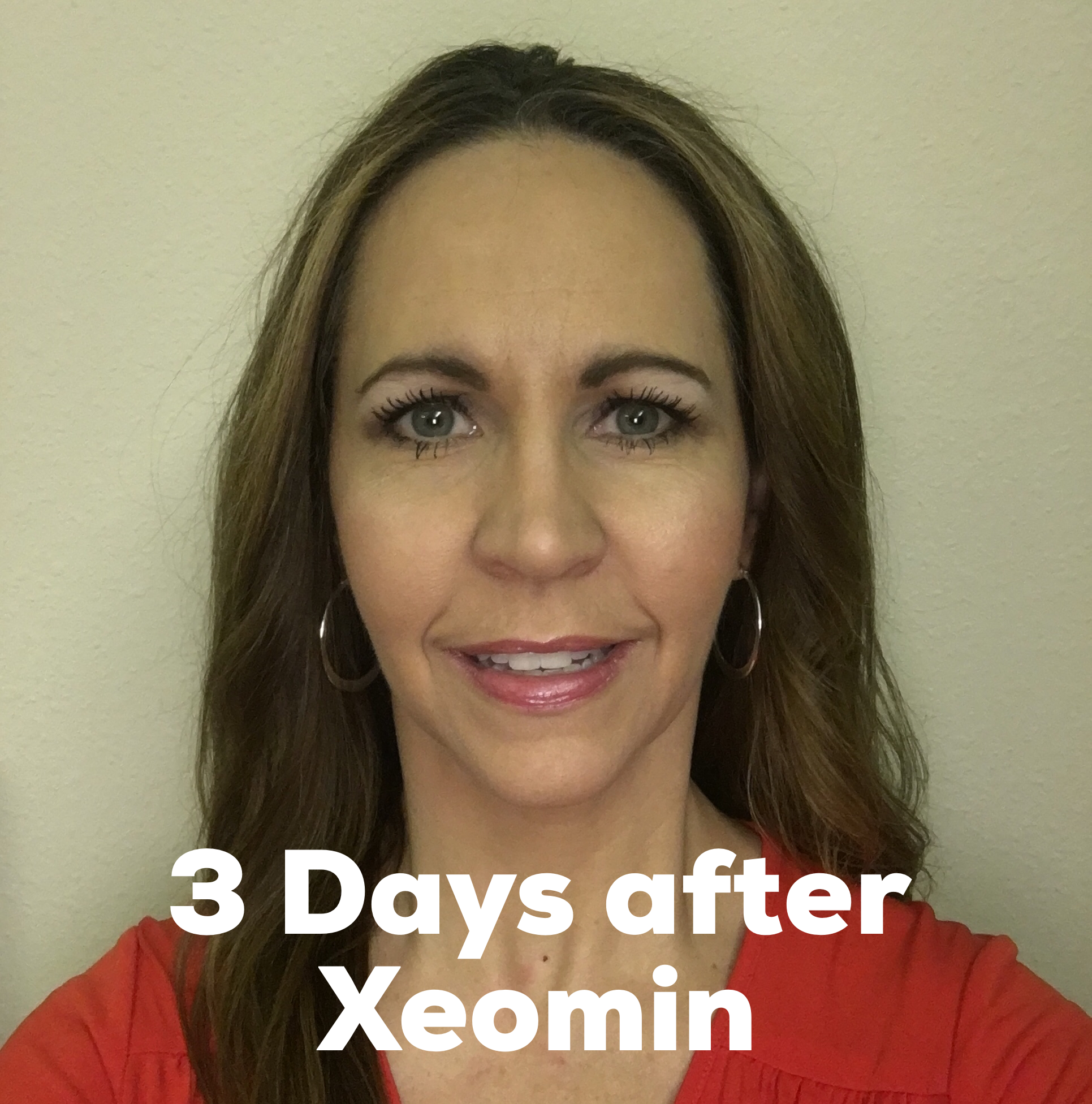 Xeomin before after pictures